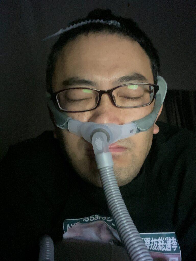 CPAP装着で睡眠時無呼吸の治療